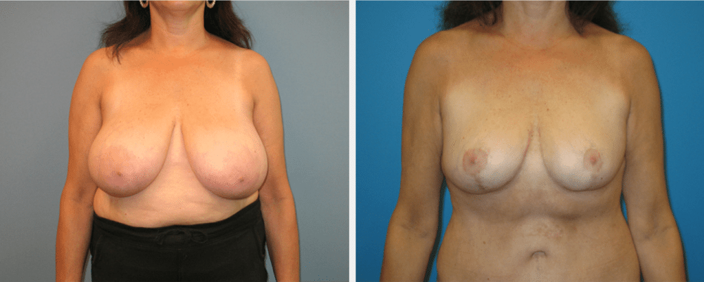 A before and after image of a woman that underwent breast reduction surgery