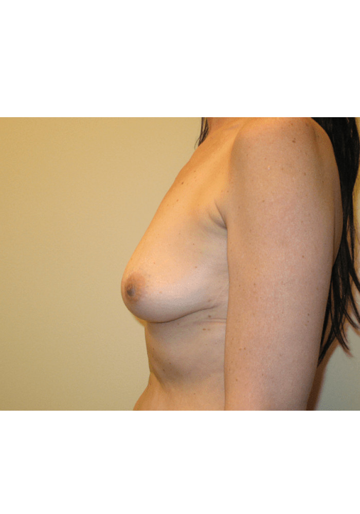 Breast Augmentation – Case 2