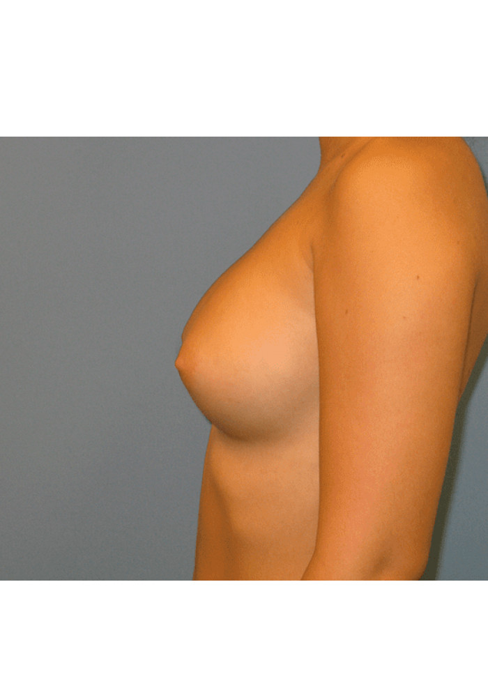 Breast Augmentation – Case 5