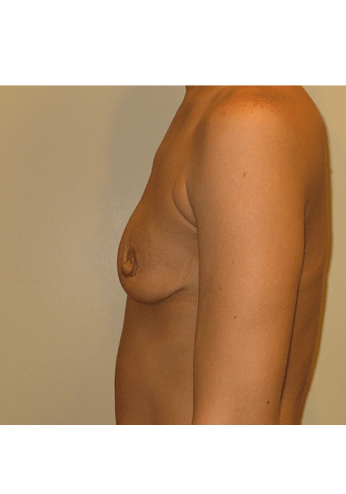 Breast Augmentation – Case 8