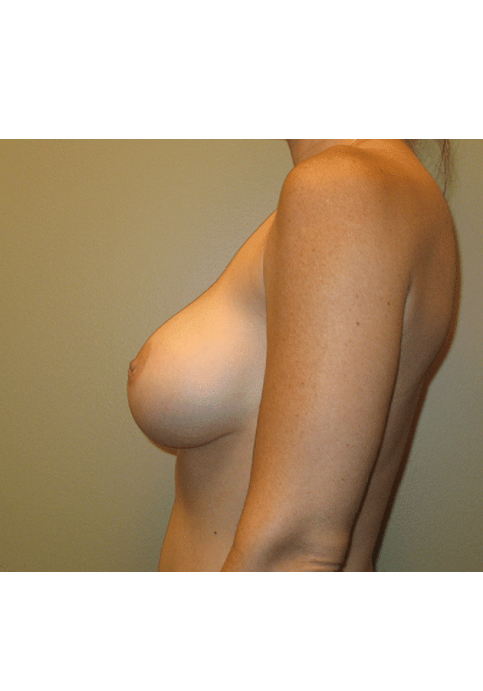 Breast Augmentation – Case 10