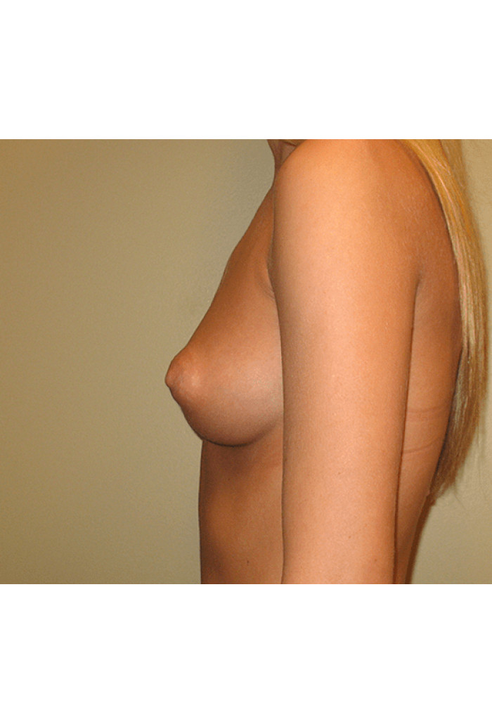 Breast Augmentation – Case 12