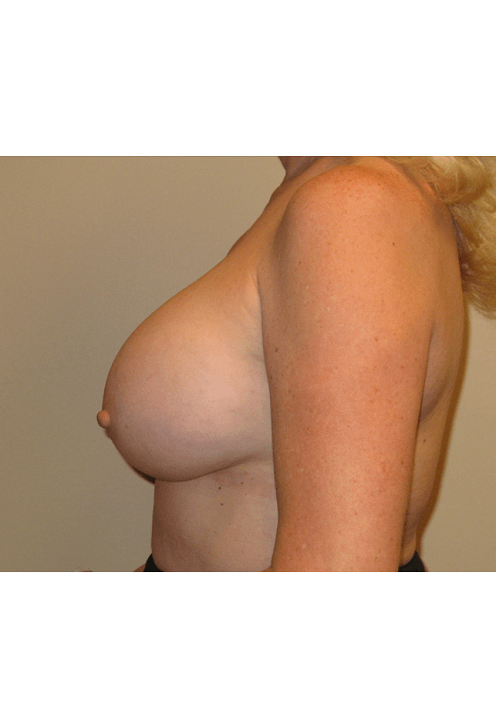 Breast Augmentation – Case 14