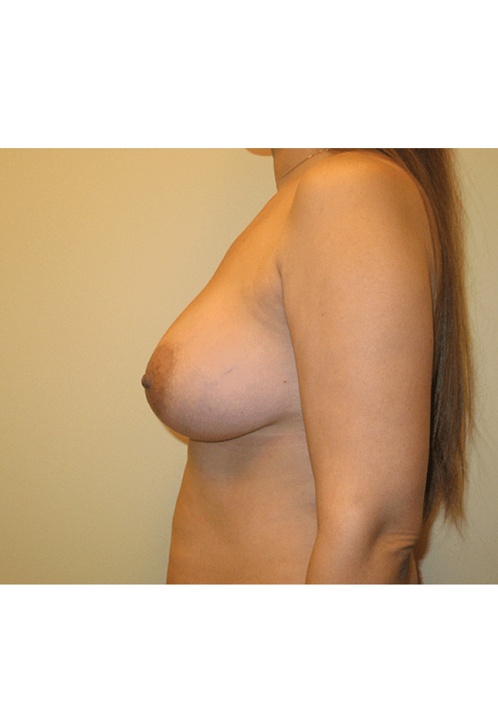 Breast Augmentation – Case 16