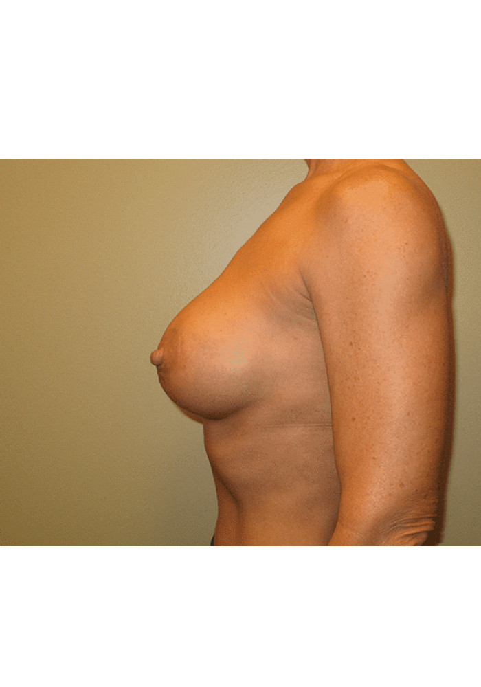Breast Augmentation – Case 17