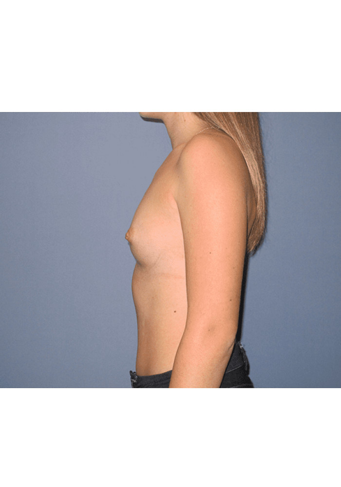 Breast Augmentation – Case 18