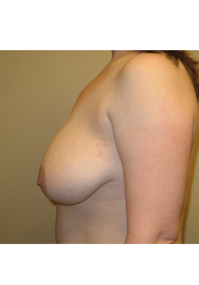 Breast Lift – Case 2