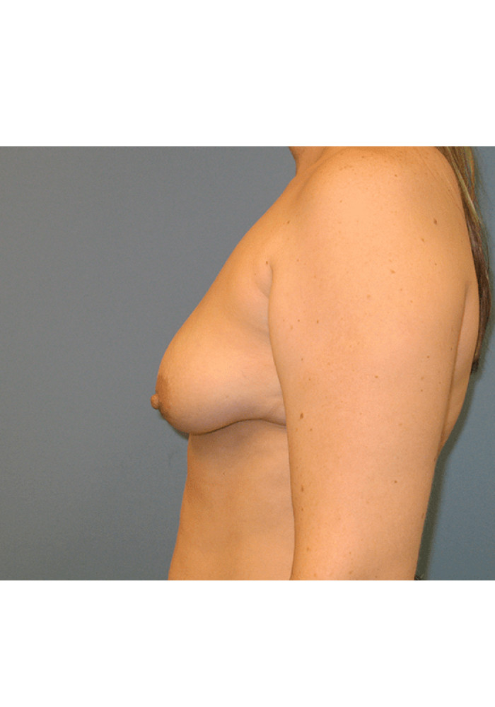 Breast Lift – Case 3