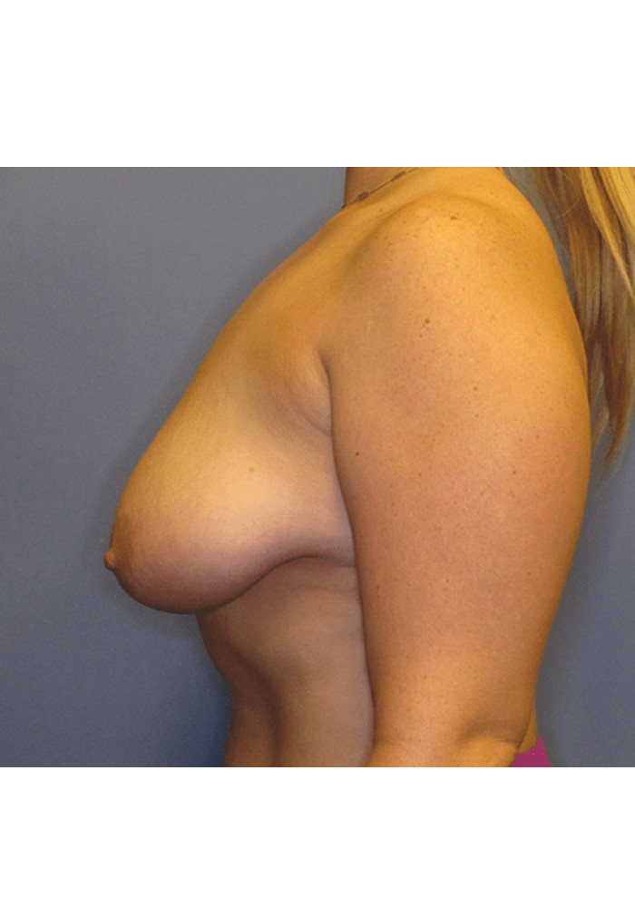 Breast Lift – Case 4