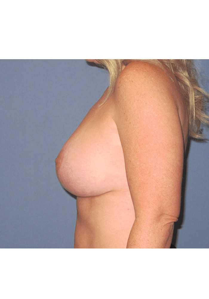 Breast Lift – Case 6