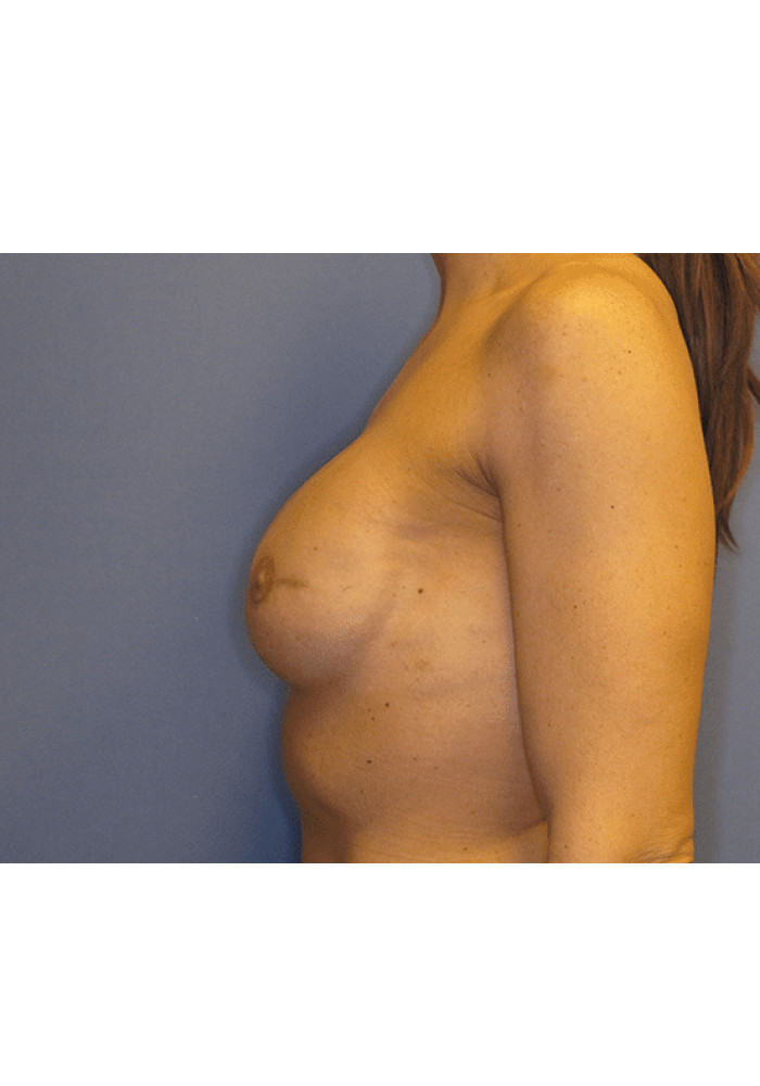Breast Reconstruction – Case 1