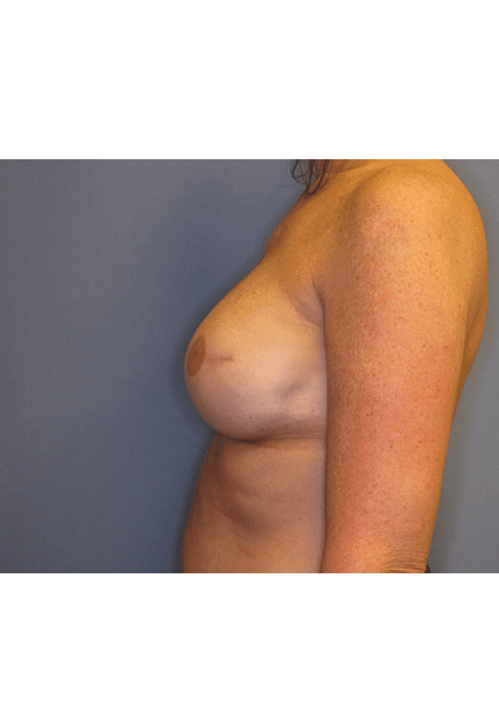 Breast Reconstruction – Case 2