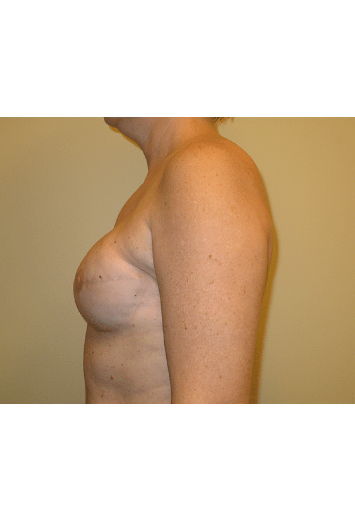 Breast Reconstruction – Case 3