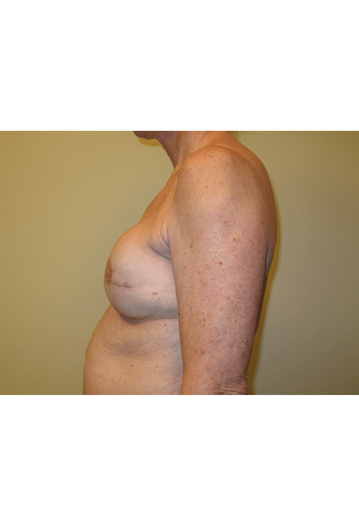 Breast Reconstruction – Case 4