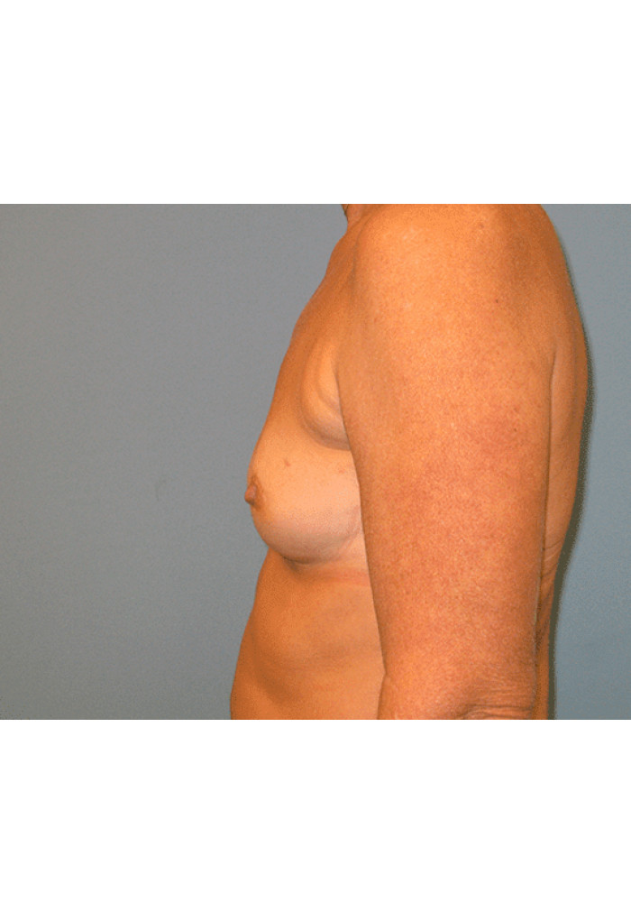 Breast Reconstruction – Case 5