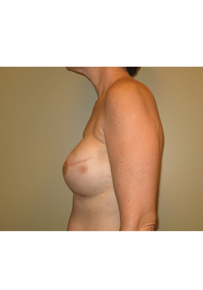 Breast Reconstruction – Case 7