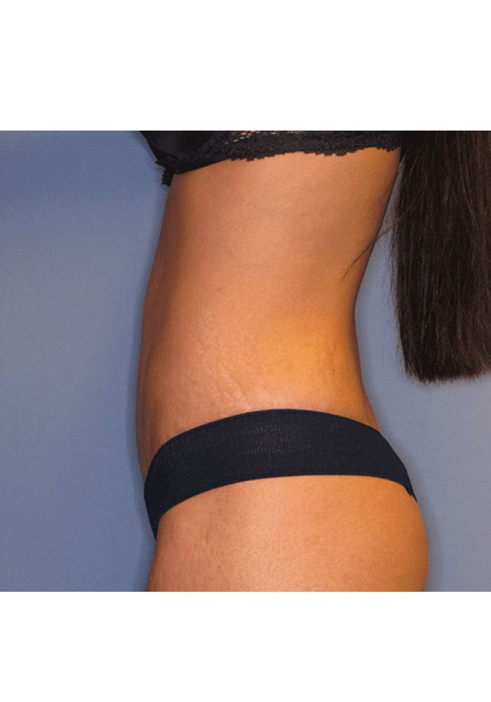 Tummy Tuck – Case 2