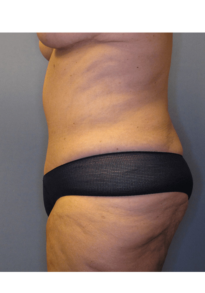 Tummy Tuck – Case 3