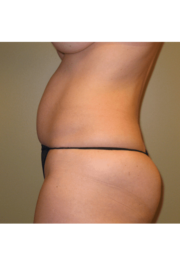 Tummy Tuck – Case 4