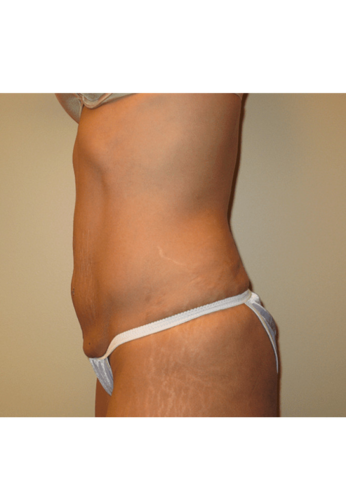 Tummy Tuck – Case 5