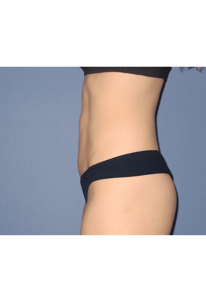 Tummy Tuck – Case 7