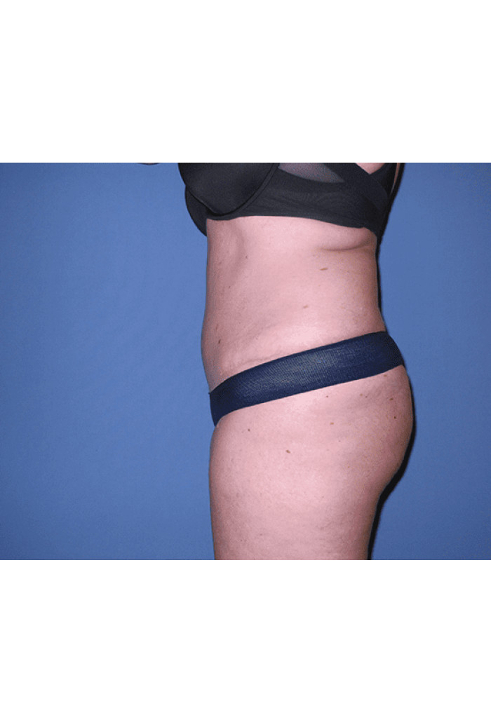 Tummy Tuck – Case 8