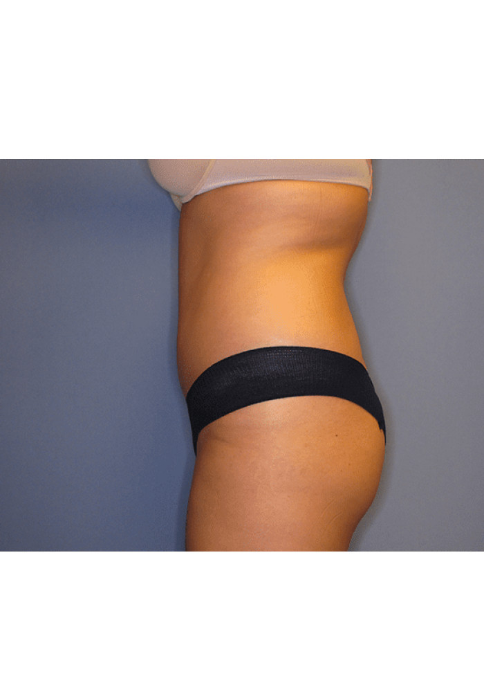 Tummy Tuck – Case 9