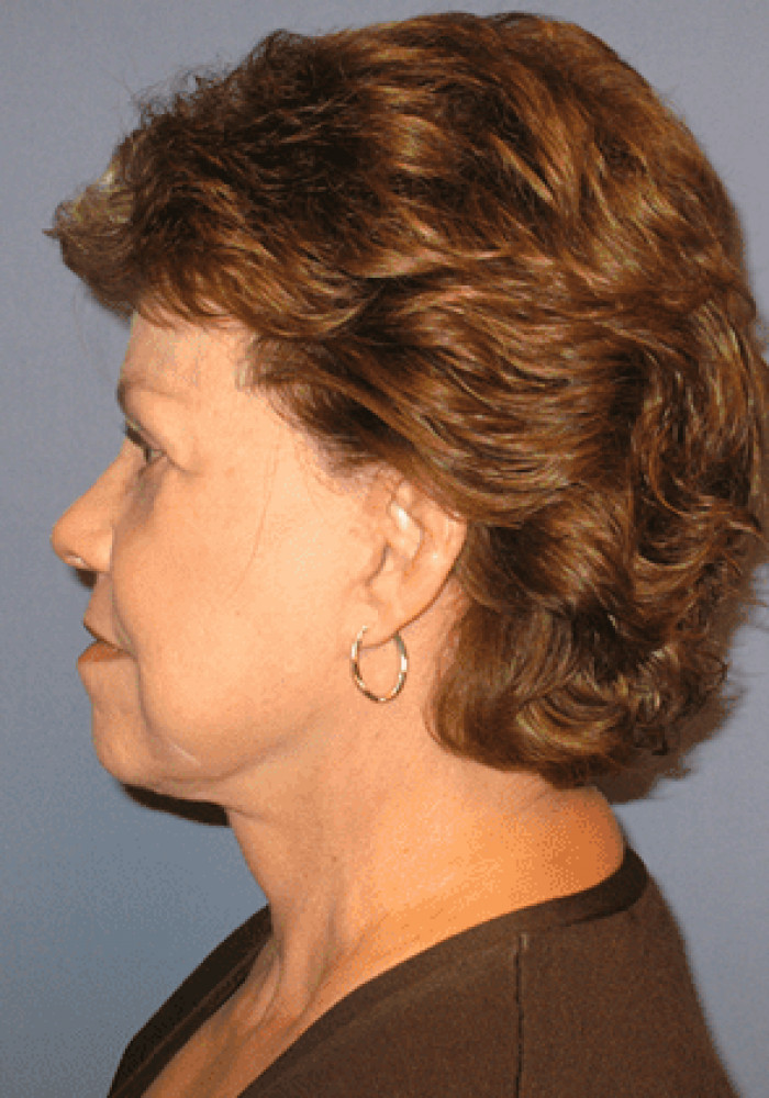 Facelift – Case 1