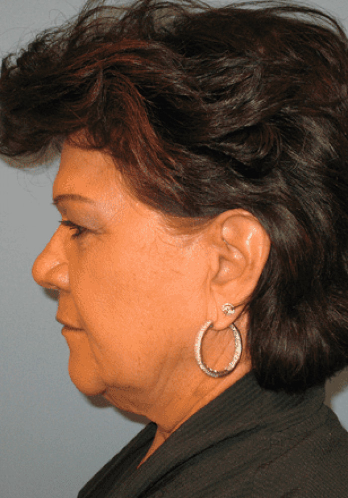Facelift – Case 2