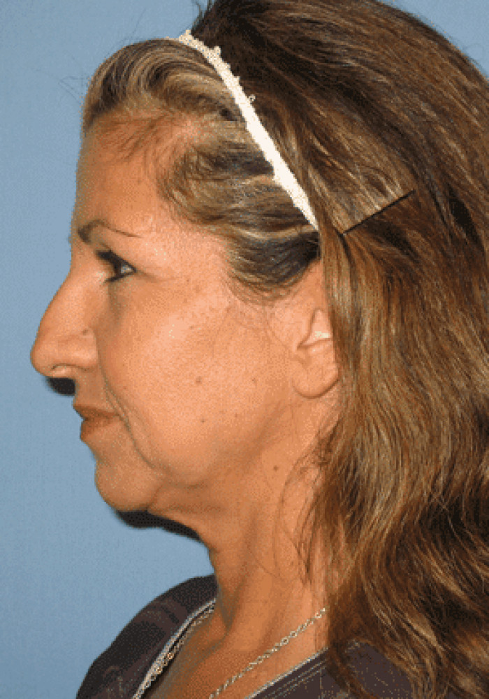 Facelift – Case 5