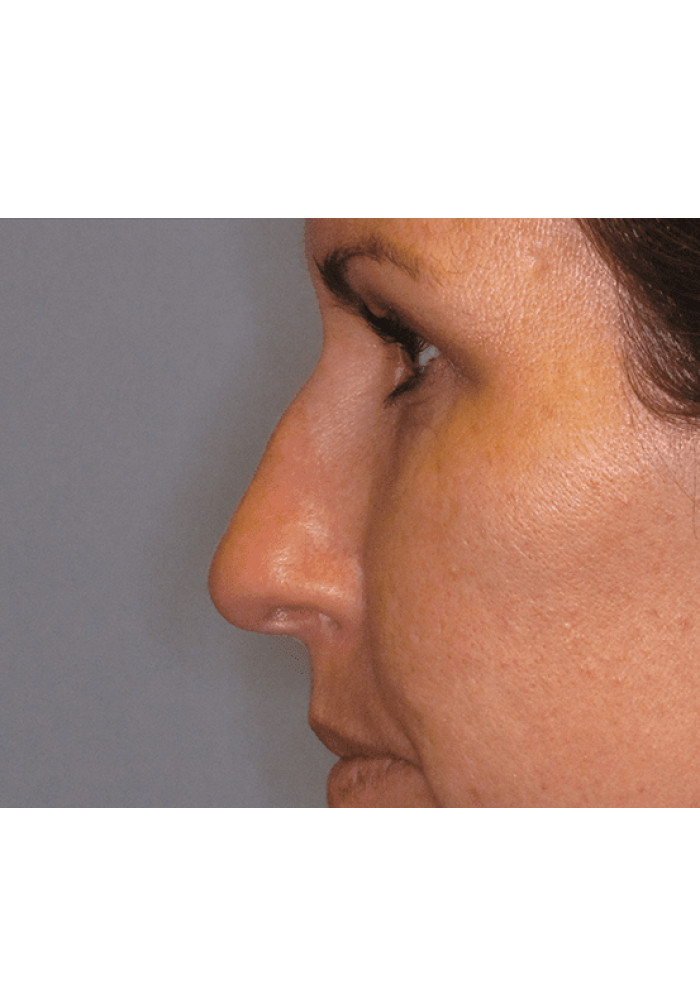 Rhinoplasty – Case 2