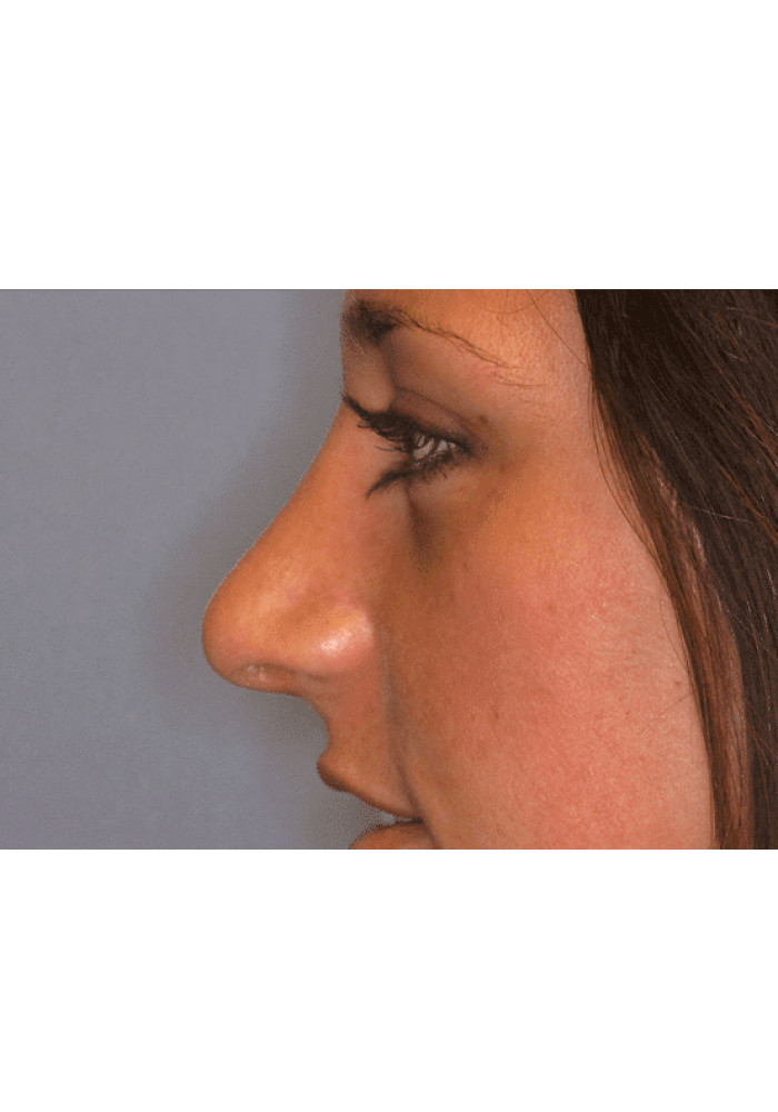 Rhinoplasty – Case 4
