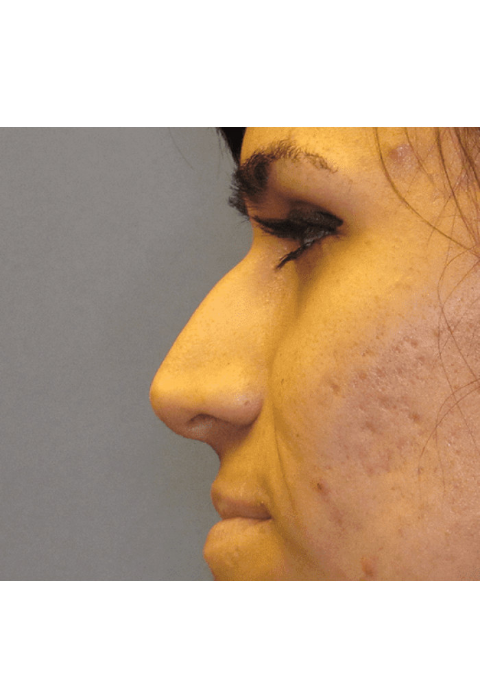 Rhinoplasty – Case 5