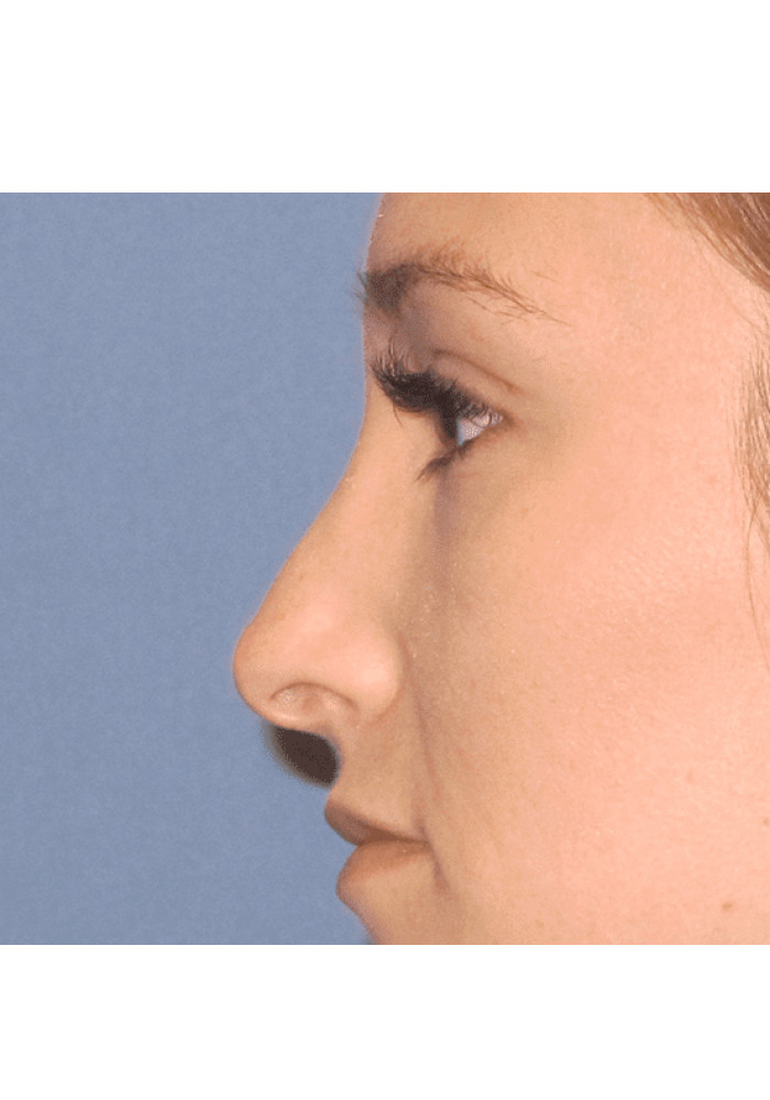 Rhinoplasty – Case 6