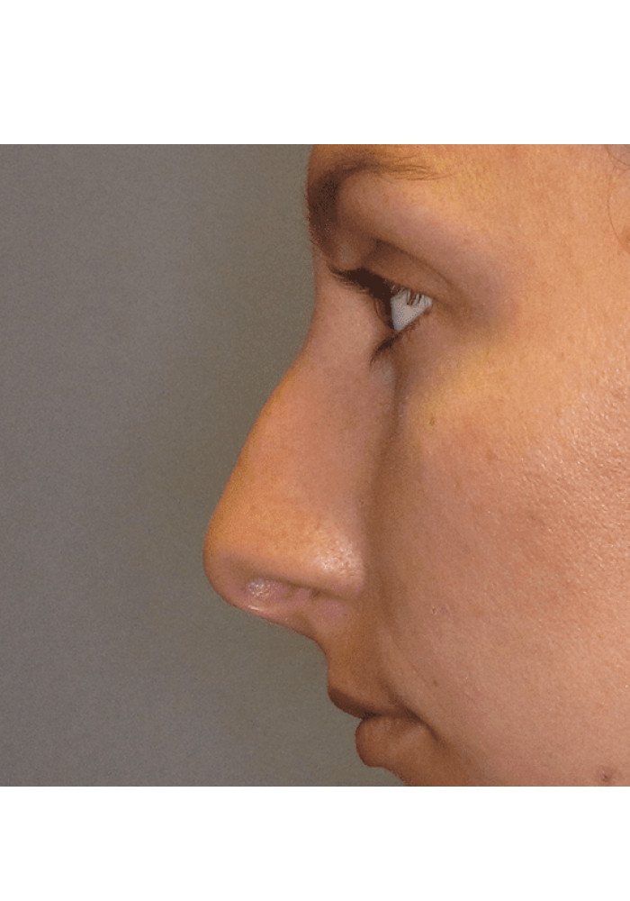 Rhinoplasty – Case 7