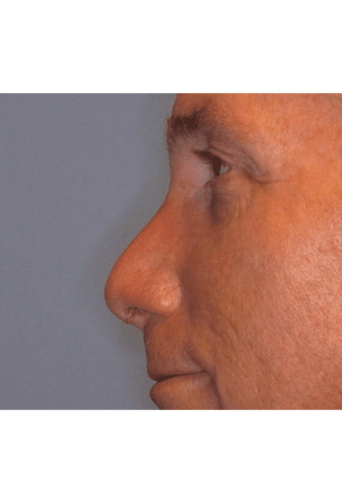 Rhinoplasty – Case 8