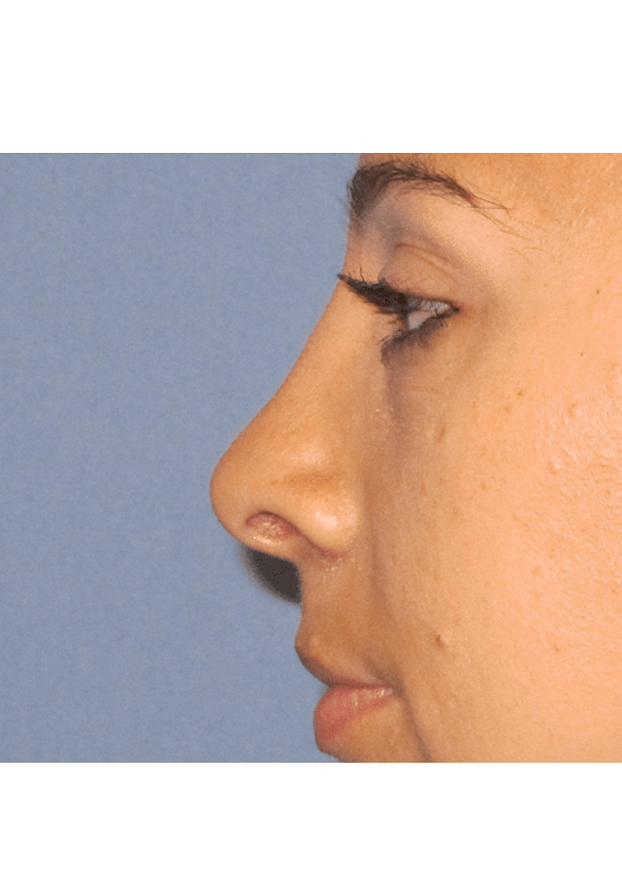 Rhinoplasty – Case 9